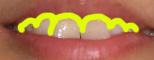 歯の汚れが落ちている画像